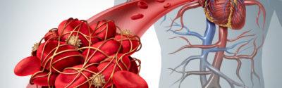 Powikłania zakrzepowo-zatorowe u chorych onkologicznych
