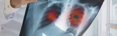 FDA: niwolumab w leczeniu drobnokomórkowego raka płuca