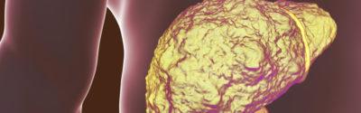 FDA zatwierdza Lenwatynib (Lenvima) na raka wątroby