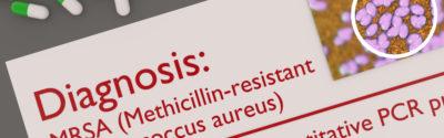 NIL: Protokół postępowania z pacjentem u którego stwierdzono bakteriemię o etiologii Staphylococcus aureus