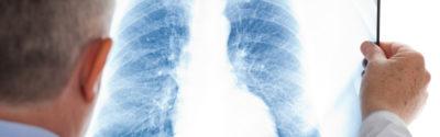 Atezolizumab – nadzieja dla polskich pacjentów onkologicznych