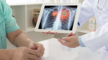 """Konferencja prasowa """"Diagnostyka i leczenie raka płuca – obecnie i prognozy na przyszłość"""""""
