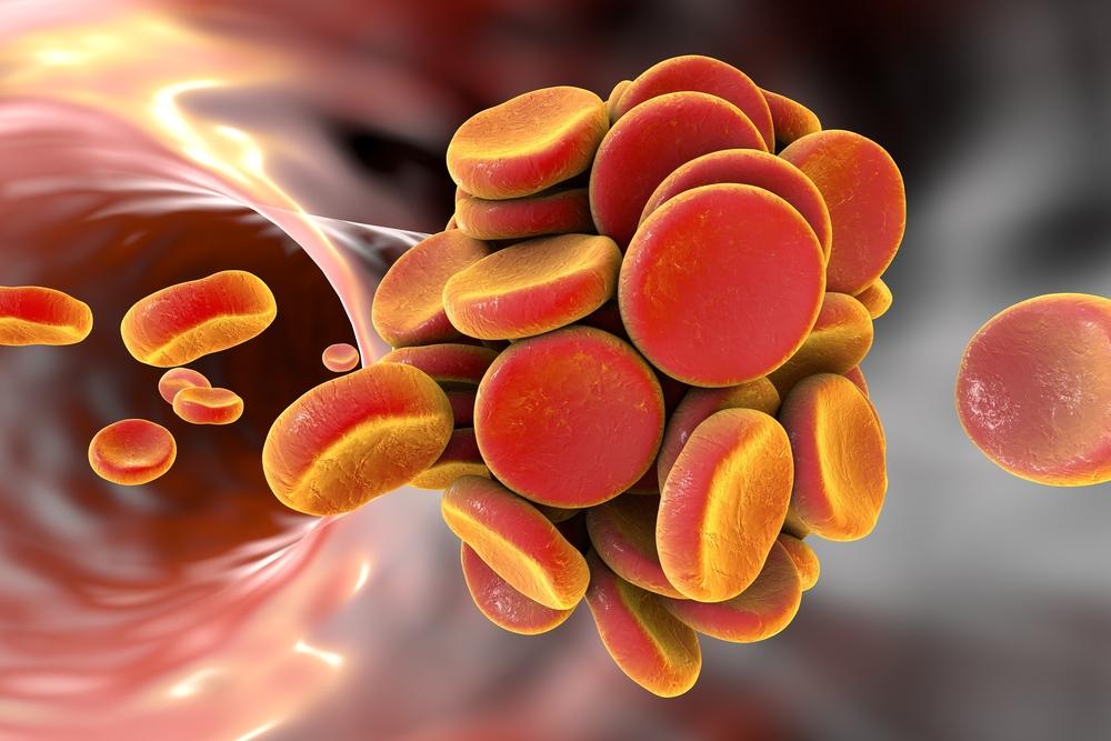 Ryzyko zdarzeń sercowo-naczyniowych podczas terapii DOAC u pacjentów z APS