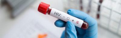 Dovato – zatwierdzono nowy lek w terapii HIV