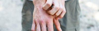 Dupilumab teraz także dla młodzieży z atopowym zapaleniem skóry