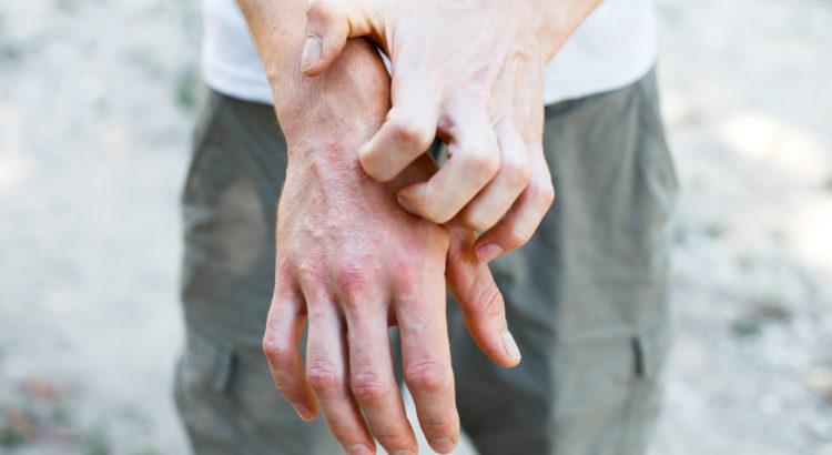 Dupixent (dupilumab) z pozwoleniem na zastosowanie u młodzieży z atopowym zapaleniem skóry.