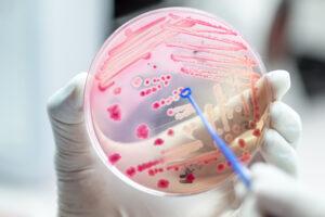 New Delhi nazywana superbakterią jest odporna na większość dostępnych obecnie antybiotyków
